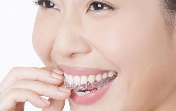 台中隱形矯正 – 牙齒矯正不嫌晚 隱適美矯正改善齒列