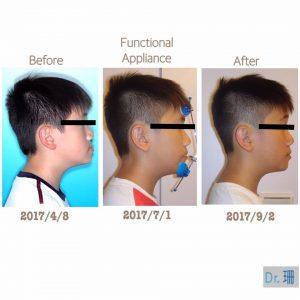 兒童戽斗矯正全紀錄:牙齒矯正不用久,暑假兩個月改變孩子的臉型