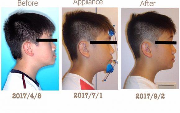 戽斗矯正-兩個月改變孩子的臉型 – 台中牙齒矯正