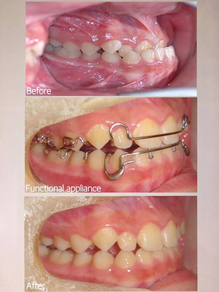 兒童戽斗矯正案例-矯正前後牙齒咬合比較-矯正2個月即有明顯變化