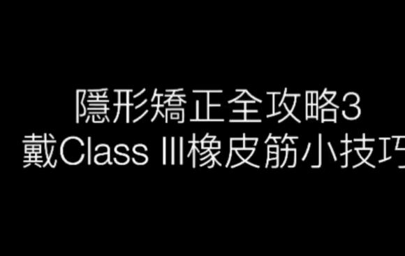 戴Class III橡皮筋小技巧 – 隱形矯正全攻略