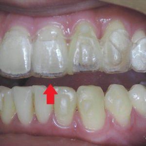 我可以換牙套了嗎? 隱適美何時換牙套-隱形矯正全攻略