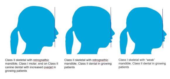 隱適美隱形牙套矯正流程-上顎暴牙案例暴牙原因分析