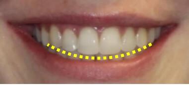 隱適美隱形牙套矯正流程-微笑曲線示意圖