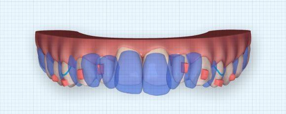 隱適美隱形牙套矯正流程-暴牙矯正押入前後比較圖