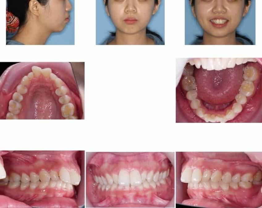 隱適美隱形牙套矯正流程-矯正前針對外觀及口內牙齒做記錄