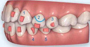 隱適美隱形牙套矯正流程-隱適美小附件說明圖