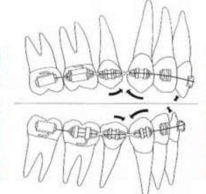 隱適美隱形牙套矯正流程-前牙掉落的副作用Bowing-effect