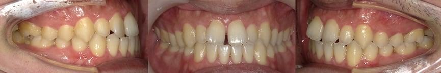 隱適美Lite案例2-門牙縫-使用Invisalign Lite都有不錯的效果-調整前-台中隱適美推薦