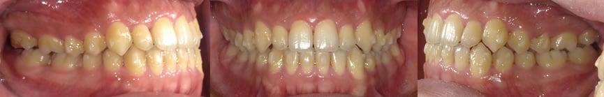隱適美Lite案例2-門牙縫-使用Invisalign Lite都有不錯的效果-調整後-台中隱適美推薦