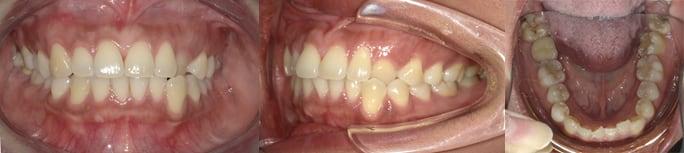 隱適美Lite案例4-犬齒內縮-下排門牙亂-主動從Invisalign Lite升級到Comprehensive-調整前-台中隱適美推薦