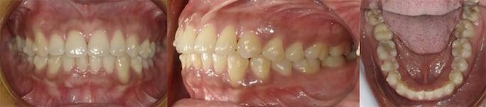 隱適美Lite案例4-犬齒內縮-下排門牙亂-主動從Invisalign Lite升級到Comprehensive-調整後-台中隱適美推薦