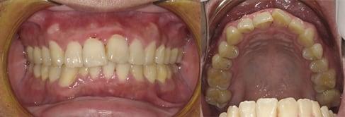 隱適美Lite案例5-門牙歪斜-僅用Invisalign Lite調整上顎-調整前-台中隱適美推薦