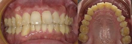 隱適美Lite案例5-門牙歪斜-僅用Invisalign Lite調整上顎-調整後-台中隱適美推薦