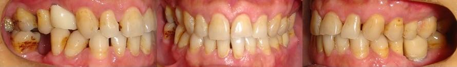隱適美Lite案例6-牙周病需植牙-空間不佳用Invisalign Lite調整-調整前-台中隱適美推薦