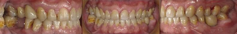 隱適美Lite案例6-牙周病需植牙-空間不佳用Invisalign Lite調整-調整後-台中隱適美推薦