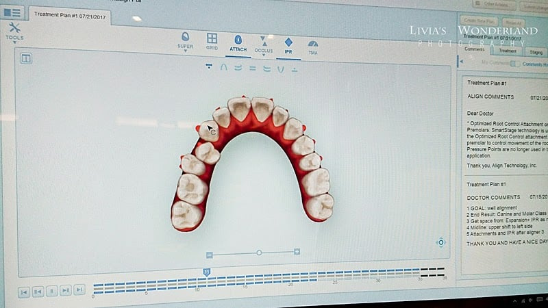 隱適美隱形牙套日記-invisalign-戴蒙矯正器-牙齒矯正心得比較-也可以看到牙齒排列的進步