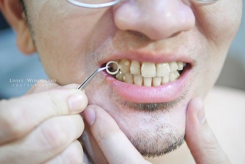 隱適美隱形牙套日記-invisalign-戴蒙矯正器-牙齒矯正心得比較-依狀況會裝上輔助器-attachment豆豆