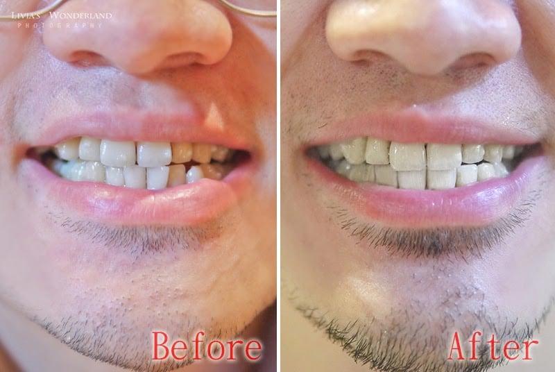 隱適美隱形牙套日記-invisalign-戴蒙矯正器-牙齒矯正心得比較-戴隱適美一年半的前後比較圖