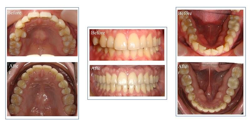 隱適美隱形牙套日記-invisalign-戴蒙矯正器-牙齒矯正心得比較-戴隱適美一年半的口腔牙齒近照前後比較