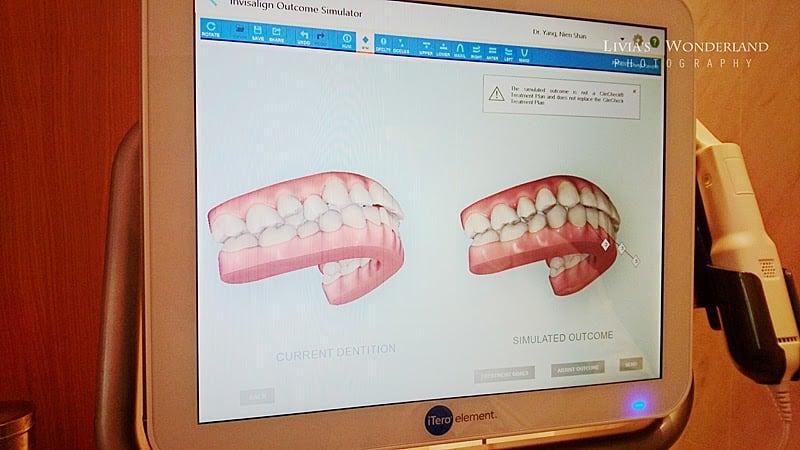 隱適美隱形牙套日記-invisalign-戴蒙矯正器-牙齒矯正心得比較-掃完後立刻運算出矯正流程與結果