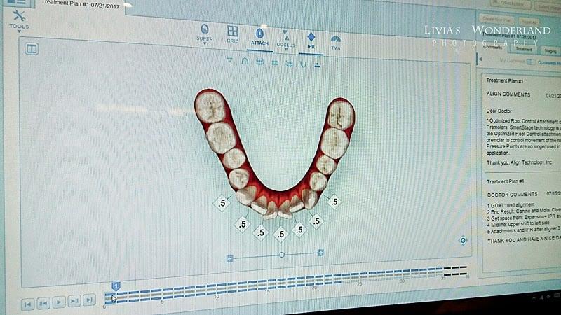 隱適美隱形牙套日記-invisalign-戴蒙矯正器-牙齒矯正心得比較-有動畫看到每副牙套的改變