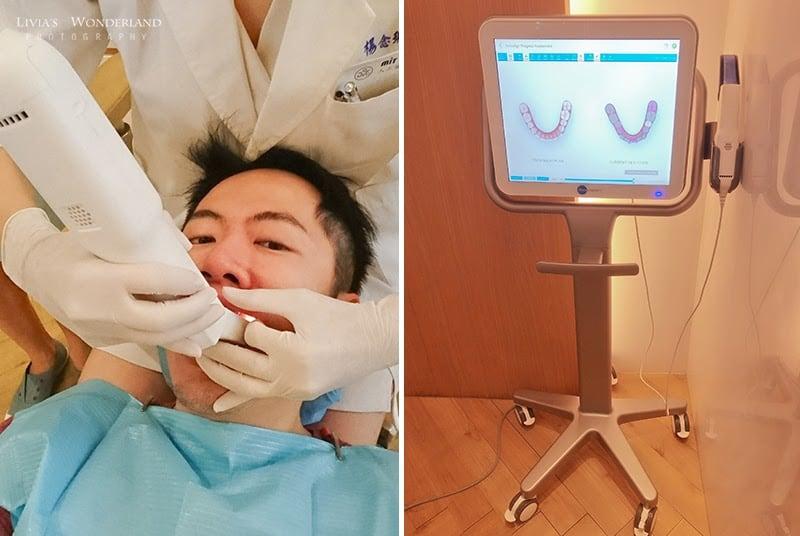隱適美隱形牙套日記-invisalign-戴蒙矯正器-牙齒矯正心得比較-隱適美專用3D口掃機