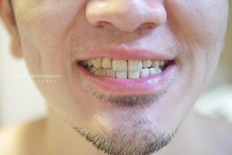隱適美隱形牙套日記-invisalign-戴蒙矯正器-牙齒矯正心得比較-隱適美療程一年多後牙齒排列非常整齊
