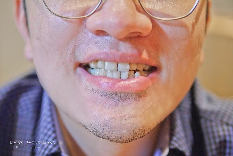 隱適美隱形牙套日記-invisalign-戴蒙矯正器-牙齒矯正心得比較-Angus原本牙齒狀況