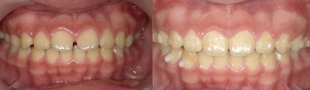 兒童牙齒矯正黃金期-暴牙矯正-戽斗矯正-mrc矯正-兒童牙齒矯正案例-門牙有縫的矯正
