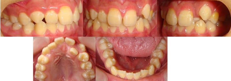 兒童牙齒矯正案例-齒列不正矯正前的各角度牙齒狀況