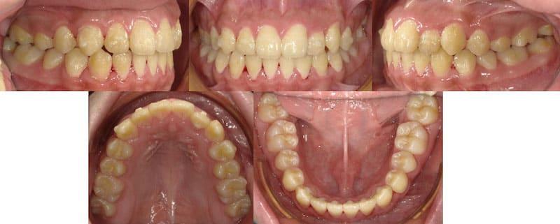 兒童牙齒矯正案例-齒列不正矯正後的各角度牙齒狀況