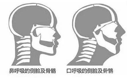 口呼吸不只影響臉型和骨骼發育-對於呼吸道健康影響也很大