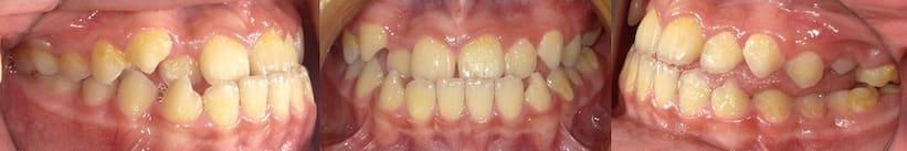 戽斗矯正案例-有前牙反咬及舌頭位置不佳問題