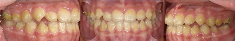 戽斗隱適美隱形矯正-配戴隱適美牙套引導下巴生長方向