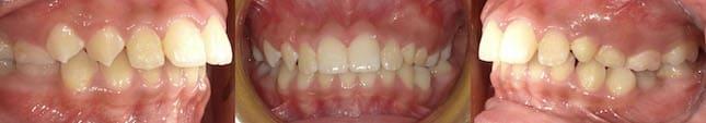 暴牙矯正案例-矯正前有下顎後縮與深咬問題