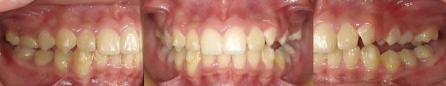 暴牙矯正案例-配戴MA十個月後暴牙和深咬改善