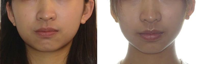 暴牙矯正案例-隱適美隱形矯正後也修正原本下巴無法輕鬆閉合的問題