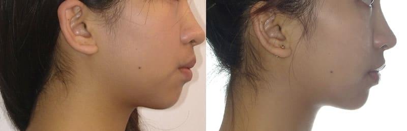 暴牙矯正案例-隱適美隱形矯正後側臉唇形變化-下巴輪廓線更美