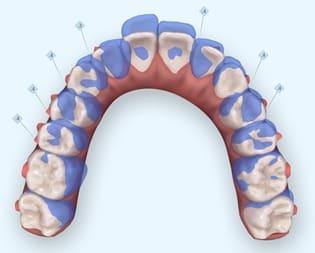 暴牙矯正案例-隱適美隱形矯正針對暴牙做的上前牙後退的設計
