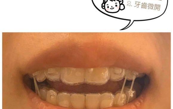 必讀!因肺炎疫情無法回診怎麼辦?隱適美矯正牙套更換SOP