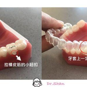 """隱適美戴橡皮筋前,要先檢查牙套上的"""" 鈕扣洞"""" – 隱形矯正全攻略"""