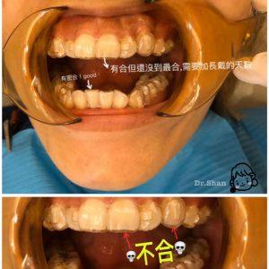 隱適美牙套不合怎麼辦?新手必看隱形牙套攻略