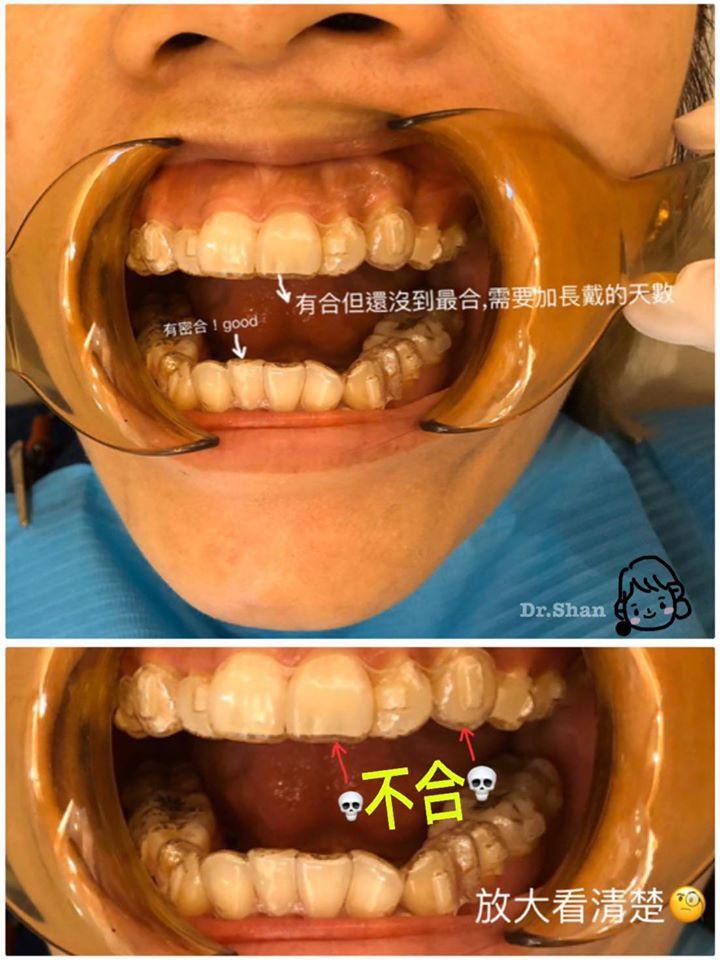 隱適美牙套不合怎麼辦-隱形牙套矯正全攻略