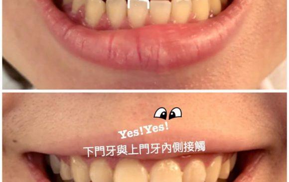 為什麼上下門牙沒有咬在一起呢?隱形牙套矯正完成的正確咬合