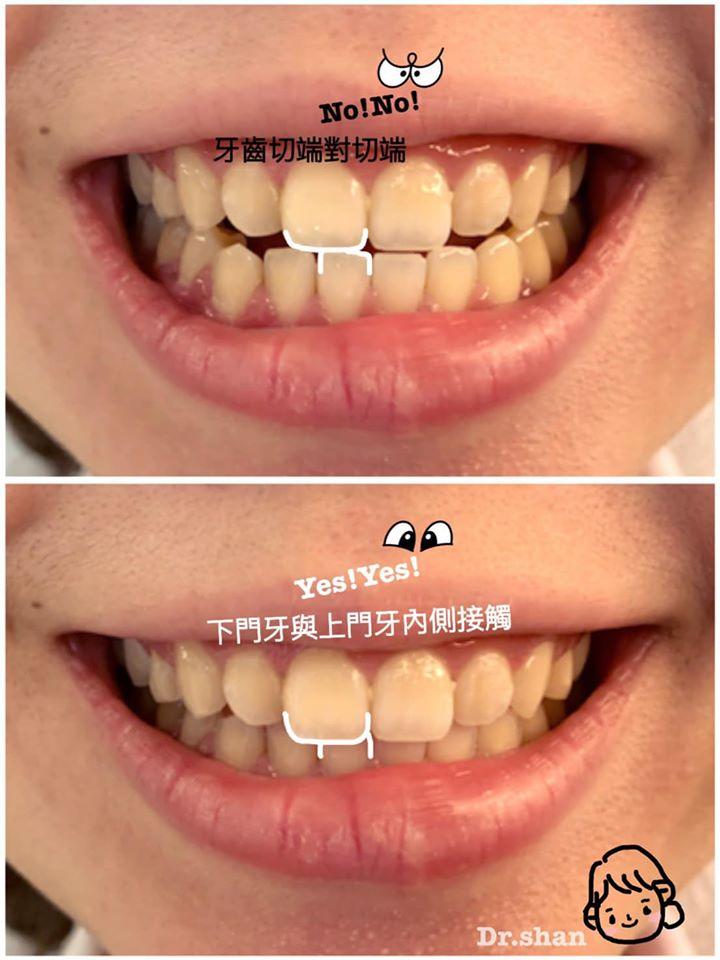 隱適美隱形牙套矯正後-上下門牙正確咬合
