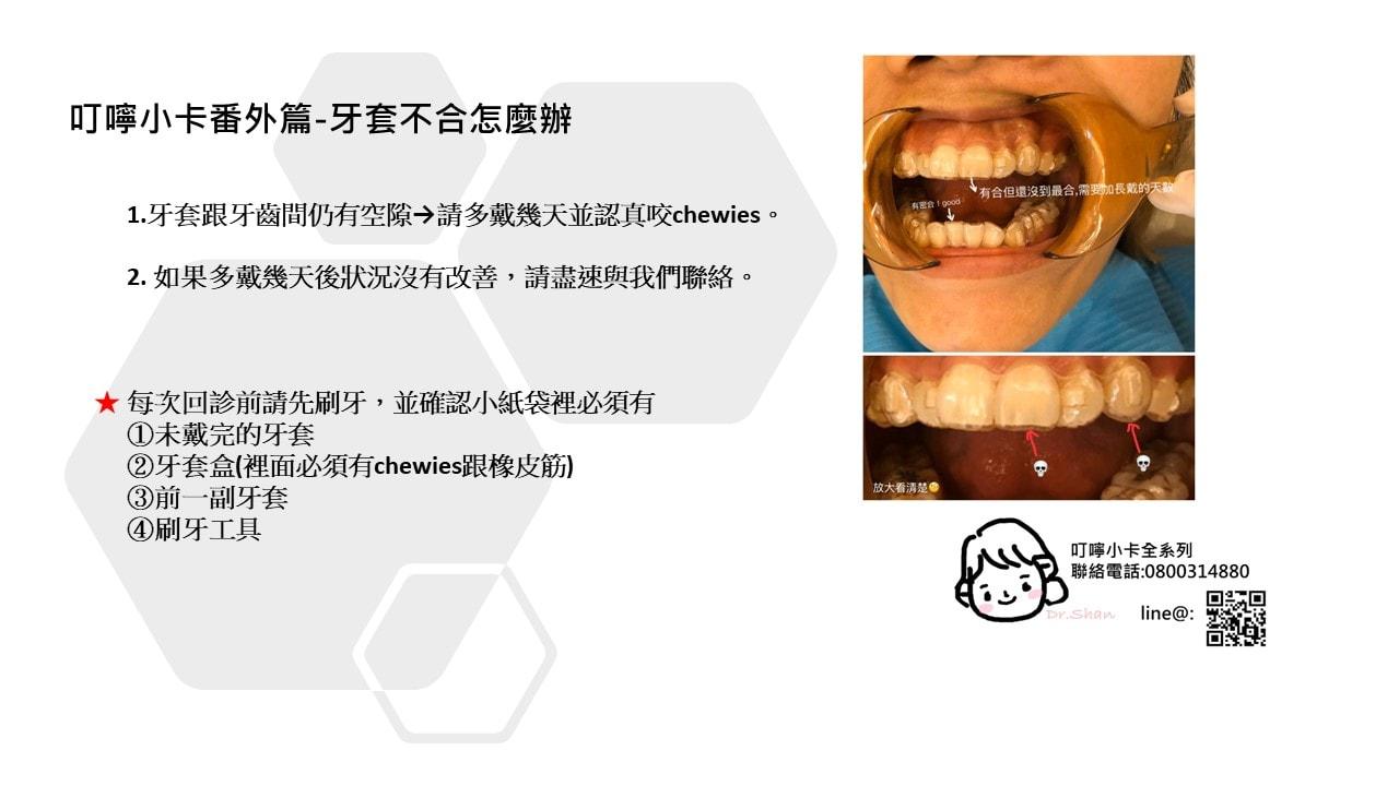 隱適美-隱形牙套-叮嚀小卡-番外篇-台中隱適美推薦-Dr.珊