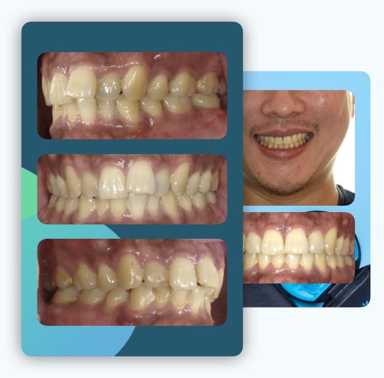 隱適美-隱形矯正-牙弓狹窄-門牙飛-台中-invisalign-牙醫-推薦-楊念珊