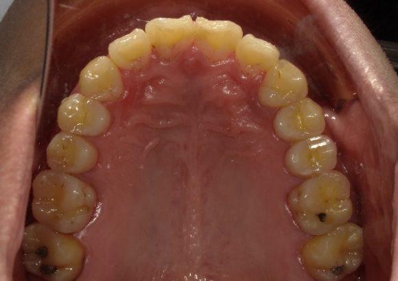 隱適美-隱形矯正-門牙飛-牙齒擁擠-牙齒矯正後-上排