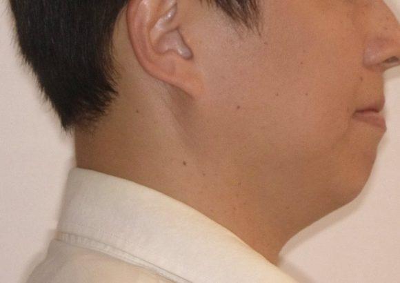 隱適美-隱形矯正-門牙飛-牙齒擁擠-牙齒矯正臉型-矯正前-側面下巴